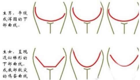看孕妇肚形 胎心次数 孕囊形状就能判断胎儿的性别
