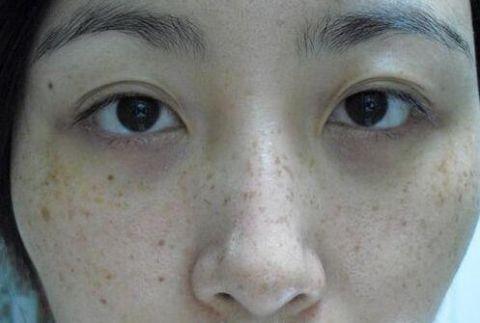 当牙膏混合针剂后,每晚涂一点,去除斑点皱纹