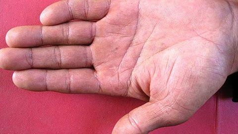 梅毒的早期症状图片是怎样的?梅毒怎么治疗好