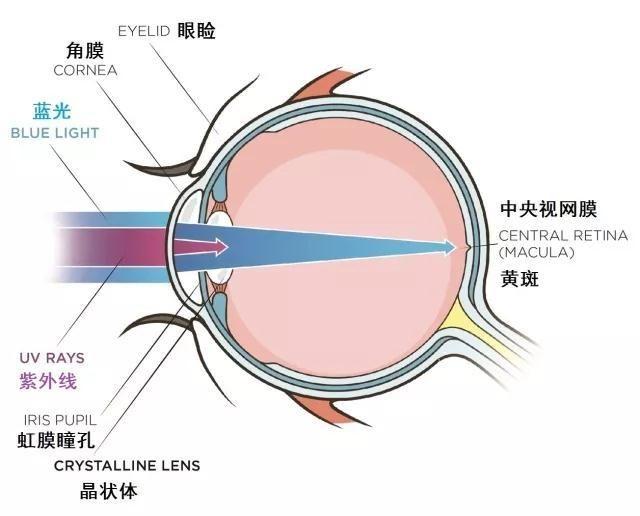 白内障眼球图片_损伤眼睛长期暴露于少量的紫外线辐射中,会明显增加将来患上白内障的