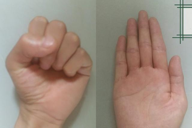 昨天写了加法的手指算,今天再给大家讲讲减法的,家长先学会,然后教给孩子,20以内减法轻松解决。 基础的手指表示参照上一篇,左手1个手指代表10,右手拇指代表5,其它手指代表1。先讲讲减法的退位,因为是手指算,所以有逢五退位和逢十退位。 逢五退位,右手拇指代表5,减1时弯曲拇指,伸出其它4个手指。 逢十退位,左手1个手指代表10,减1时弯曲左手1个手指,伸出右手全部手指(代表9)。 举一个具体例子:16-9=?