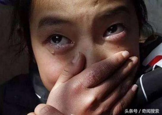 13岁女孩瘦肚子_13岁小女孩腹痛,肚子鼓得像个球,检查结果吓坏他们了