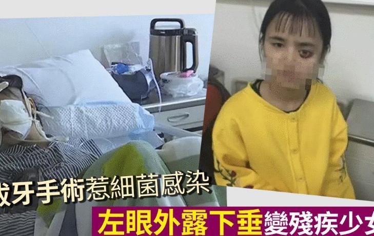 4岁拔牙受肌肉坏死,贵州女孩女生动漫感染左在面部海里的细菌图片