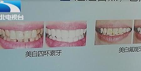 女子看牙不给钱,医生直呼伤不起